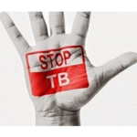 Pharmacies can help fight the TB pandemic